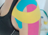 fizikalna-terapija (1)
